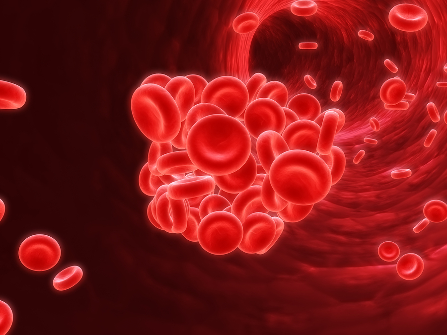 Homecare in Highland Park IL: Blood Clot Study